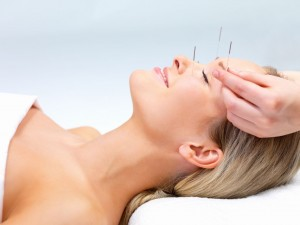 Acupuncture therapy of a young woman